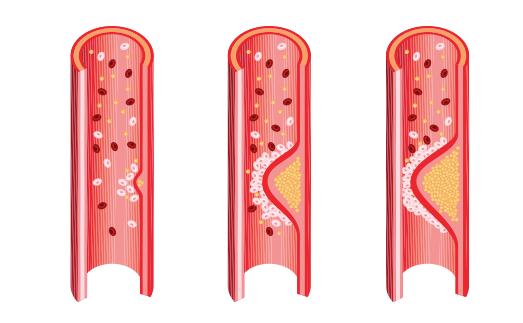Cuales son los niveles normales de colesterol en la sangre