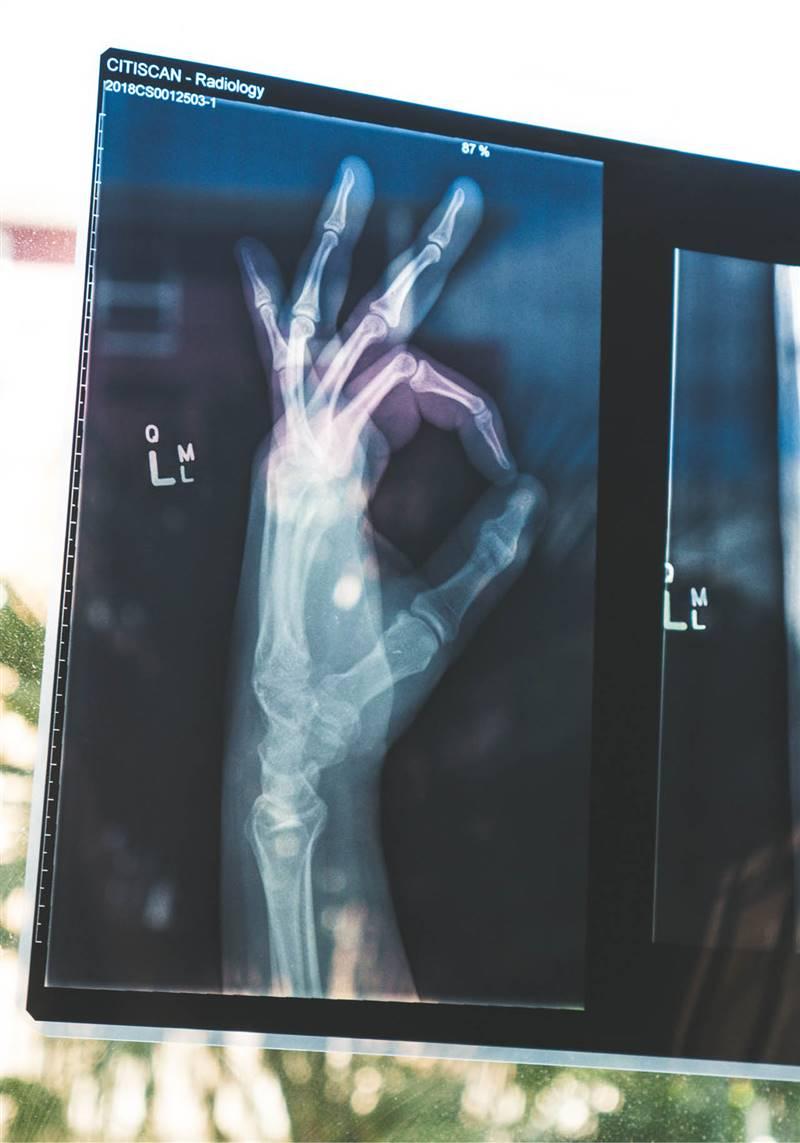 osteoporosis radiografia
